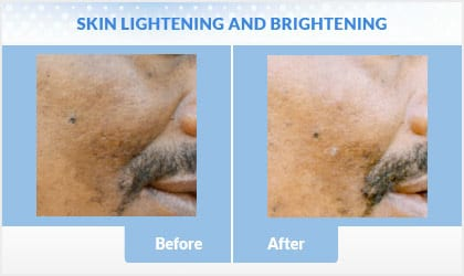 lightening-brightening before and after