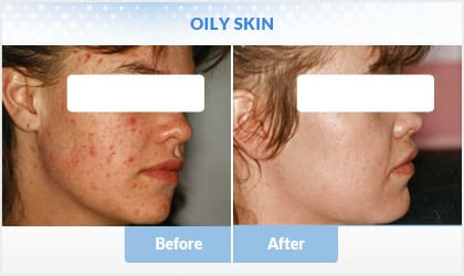 oily-skin before and after