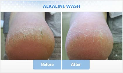 alkaline-wash before and after