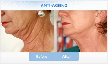anti-ageing before and after