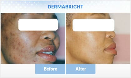 dermabright before and after