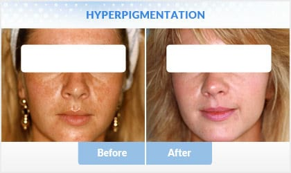 hyperpigmentation before and after