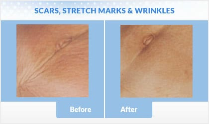 scars-stretchmarks before and after