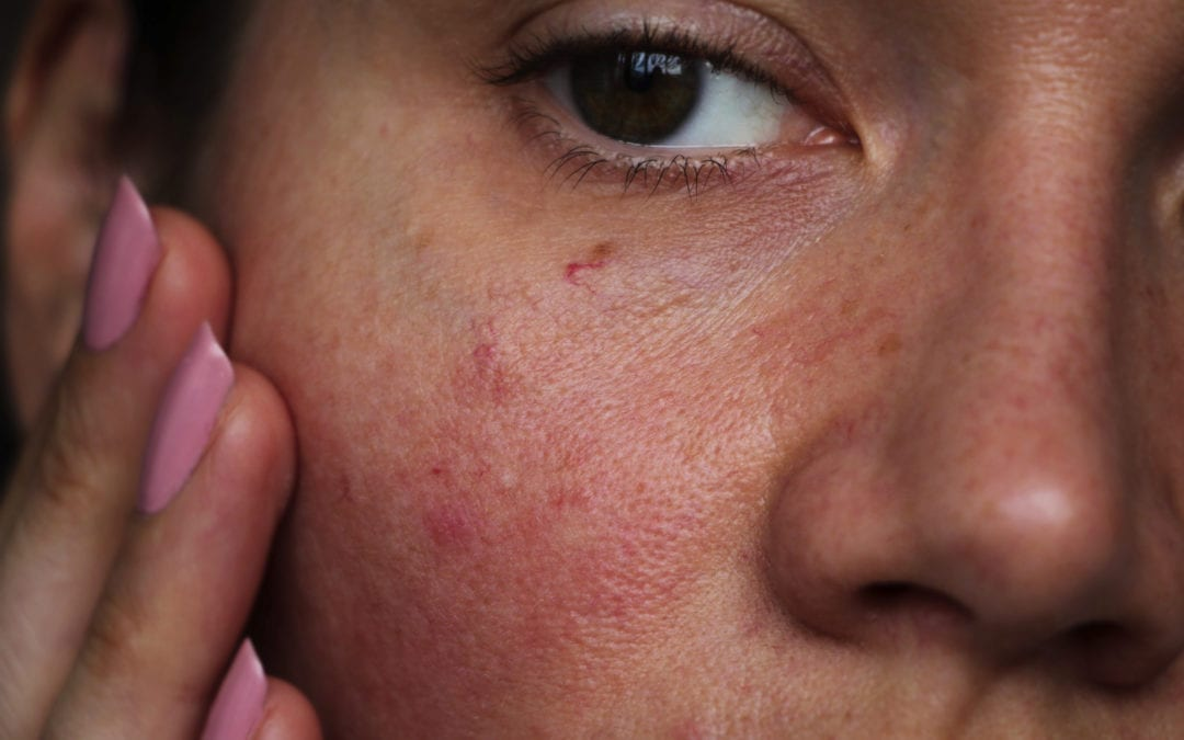 Reducing skin redness