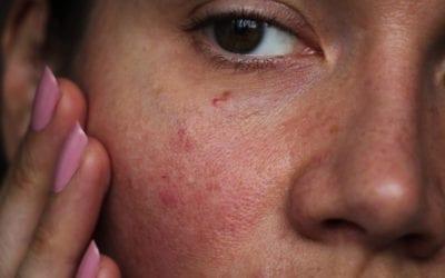 Reducing skin redness